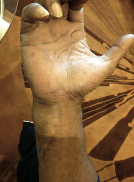 The picture of his right hand that I took in 2012 shows how large the surgical incision was to repair his hand. Photo courtesy of Dr. David Fletcher, M.D.
